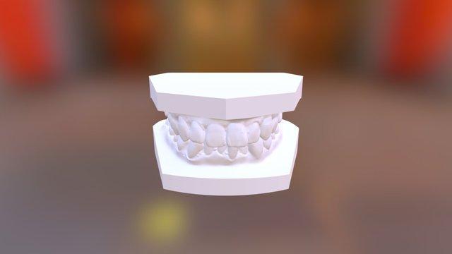 曾明志 矯正前 3D Model