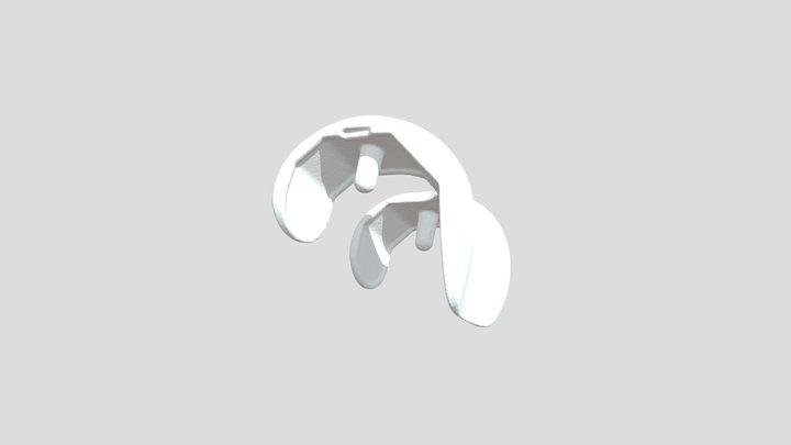 Implant 3D Model