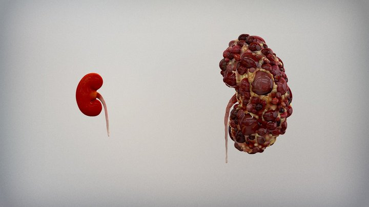 The Anatomy of Polycystic Kidney Disease (ADPKD) 3D Model