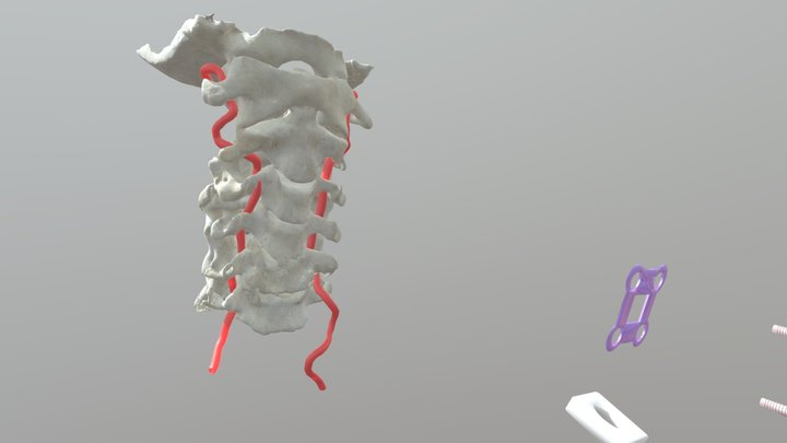 ACDF 1 3D Model