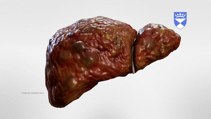 Cirrhotic Liver 3D Model