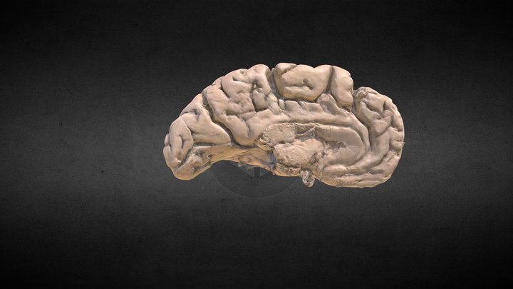 Left Cerebral Hemisphere 3D Model