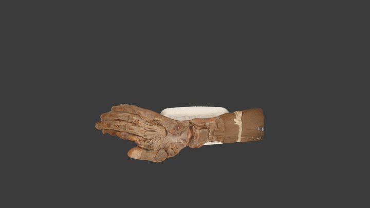 Dissection: Palmar Aspect of Hand with Forearm 3D Model