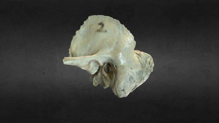 Hueso Temporal/Temporal Bone 3D Model
