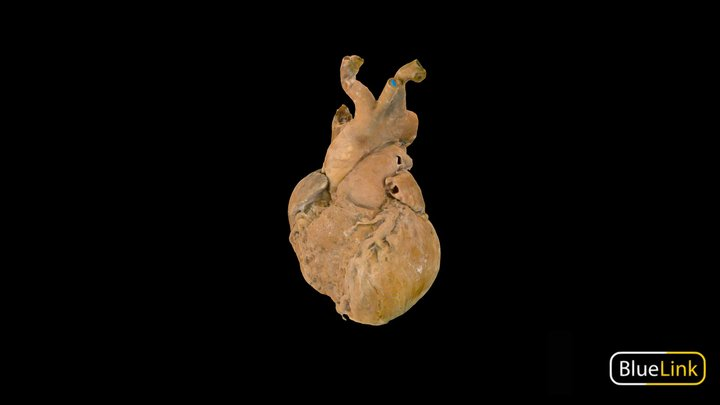 Heart - Plastinated, Labeled 3D Model