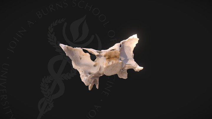 Sphenoid 3D Model