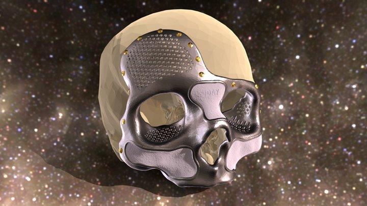 Titanium & Hydroxyapatite Skull Prosthesis 3D Model