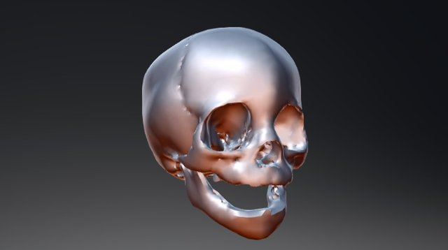 Metopic Craniosynostosis 3D Model