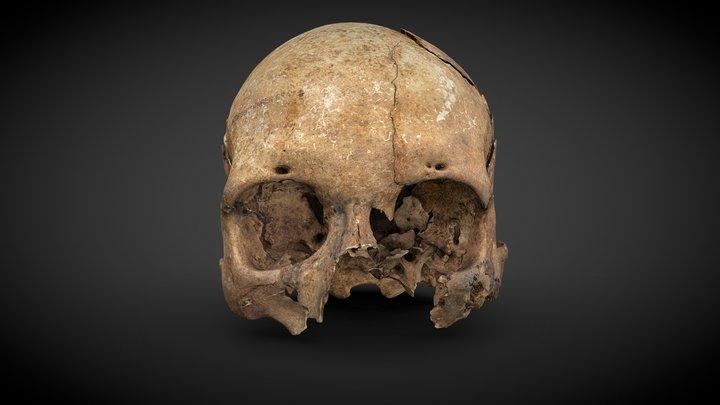 Cranium with injuries - 1089125 3D Model