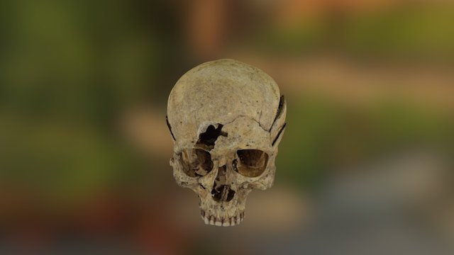 Skull with weapon trauma 3D Model