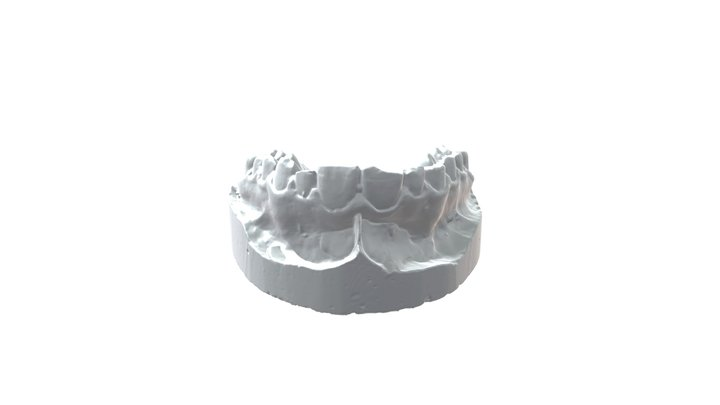 Tooth ANIWAA Spectrum FOV3 Low Resolution-2 3D Model