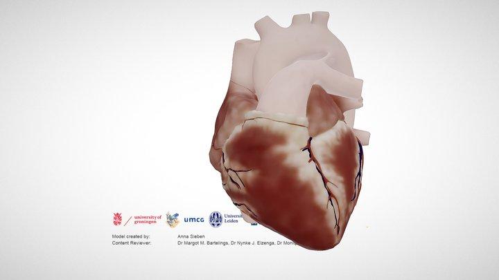 Normal Neonatal Heart 3D Model