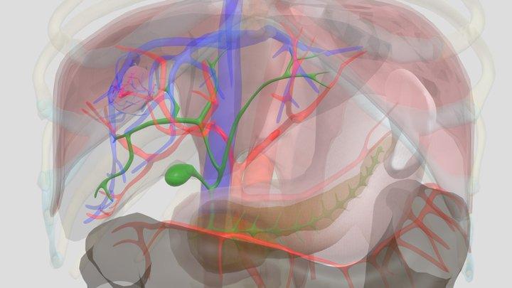 leverkanker 3D Model