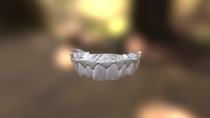 Clayton Upper Jaw 3D Model