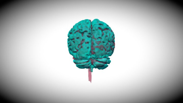 Overlay of Healthy Brain and AD Brain 3D Model