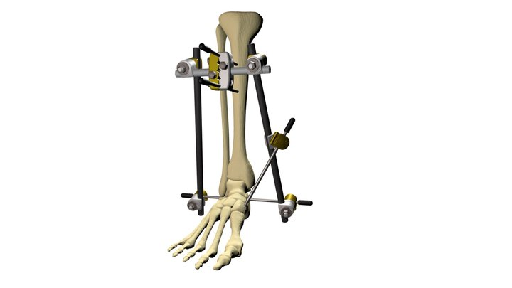OIC Large External Fixation System 3D Model