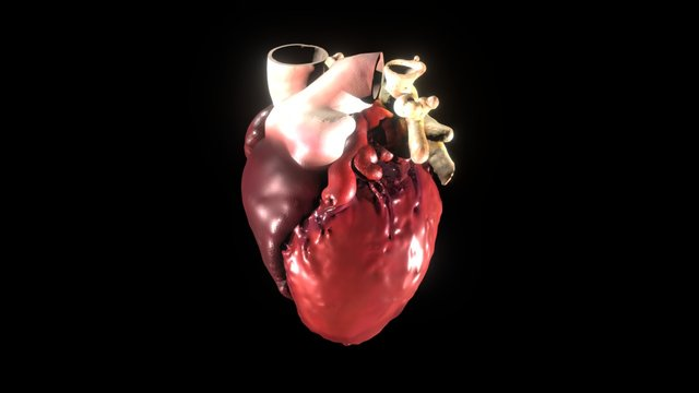 Full Patient Heart from CT - with texture 3D Model
