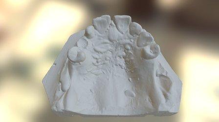 CV Upper 3D Model
