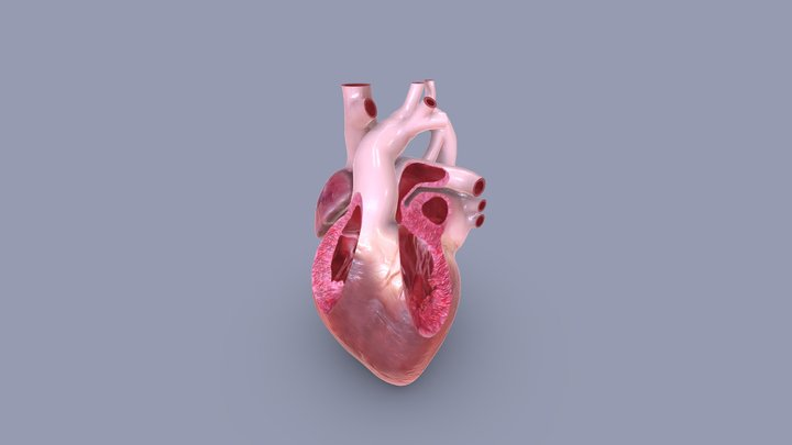 Transposition of the great arteries 3D Model