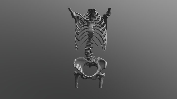 Scoliosis 3D Model
