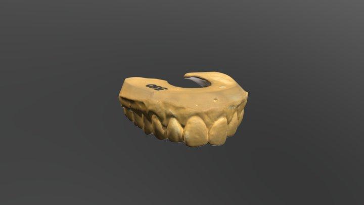 Dental Model 2 3D Model