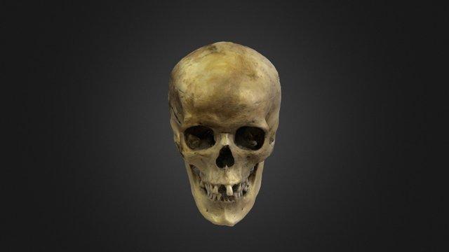 Crânio - reconstrução 3D Model