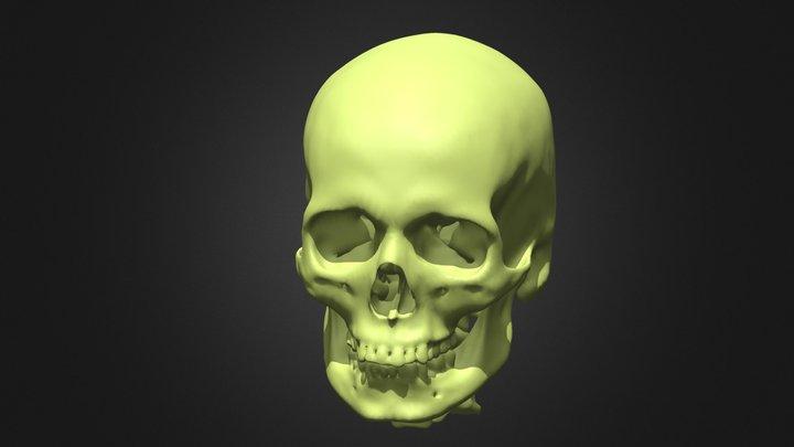 Skull Zygoma 1 3D Model