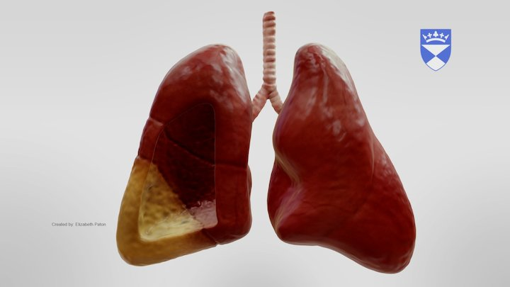 Aspiration Pneumonia 3D Model