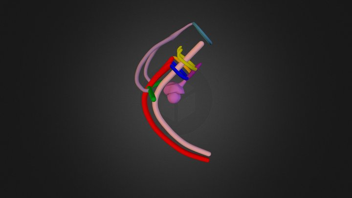 LAA Retroesophageal RSCA Stage 2 3D Model