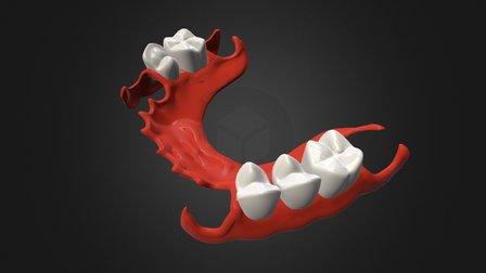 Proteza 3D Model