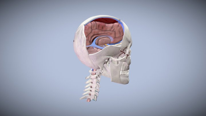 Subdural Hematoma 3D Model
