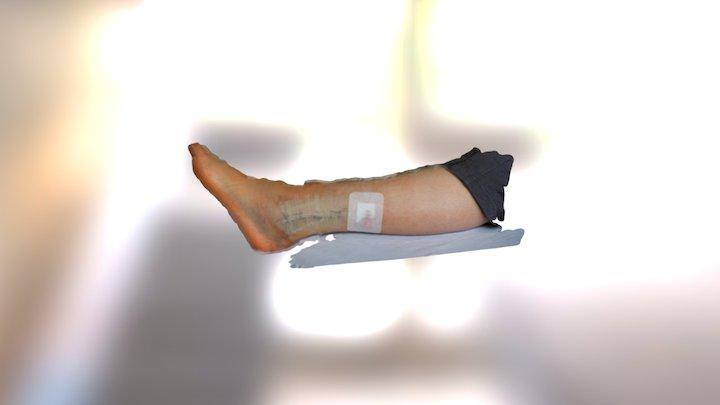 Broken Leg 3D Model
