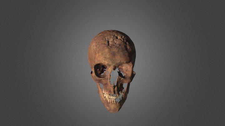 Syphilitic Skull of Frederick Davis 3D Model