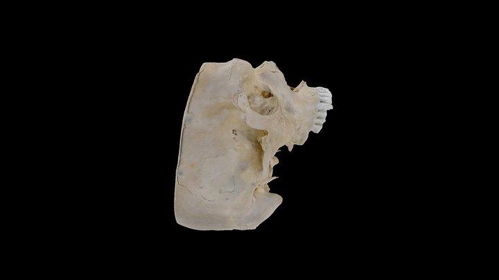 Skull First UBC Year Med School Labels 3D Model