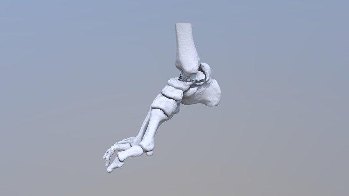 Talus fracture 3D Model