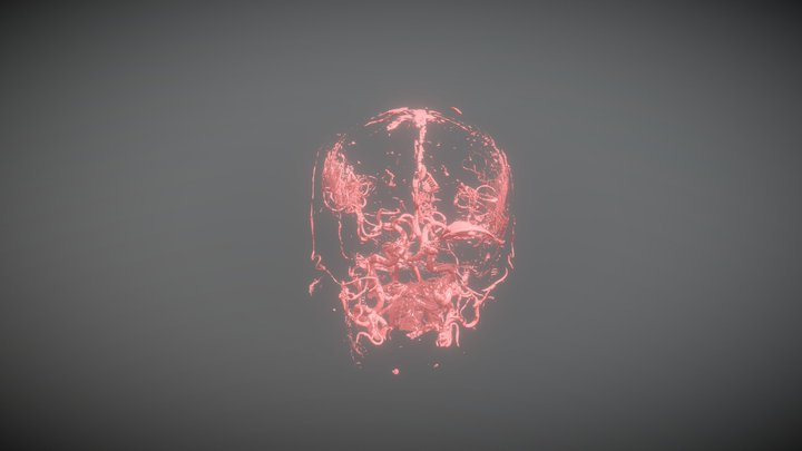 Angiotomography of AICA Aneurysm 3D Model