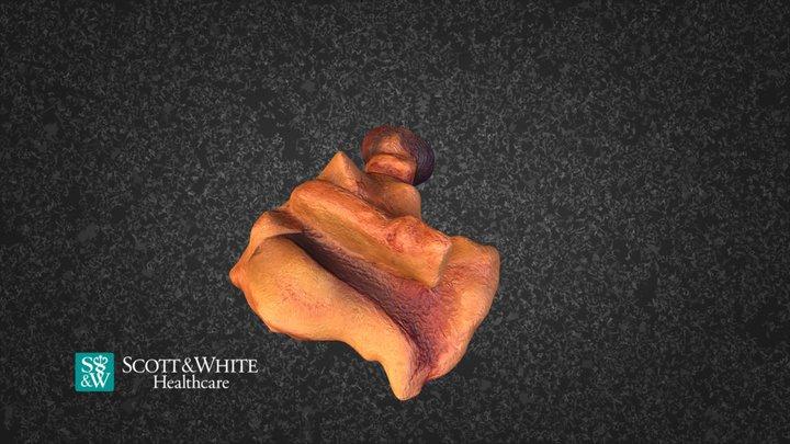 Uterus Left Ovary And Tube 237784 3D Model