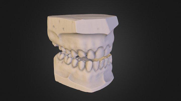 Gypsum Teeth 3D Model