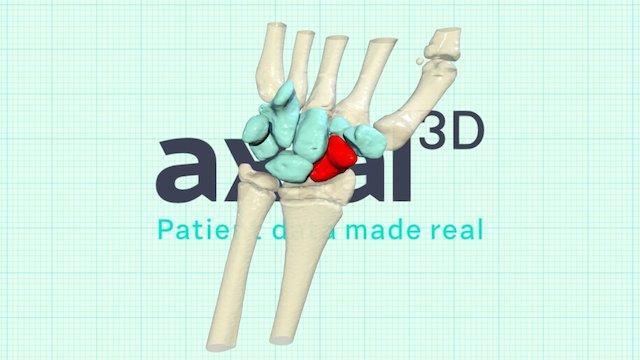 P00006 3D Model