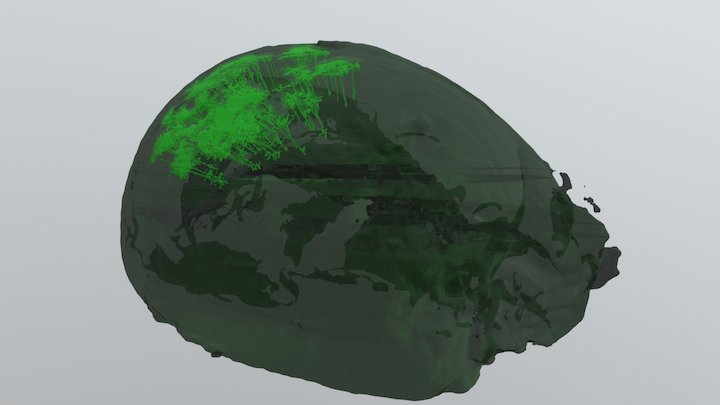 Mouse Brain Arborization 3D Model