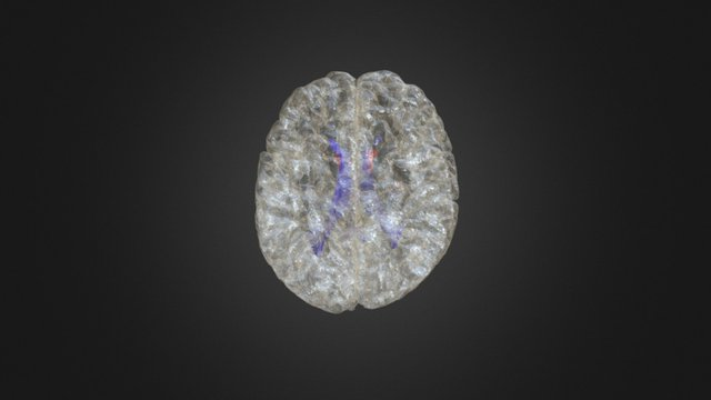 Brain w accumbens 3D Model
