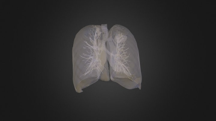 Lung Tumour 3D Model