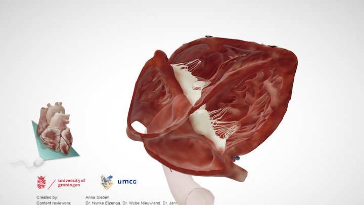 Cardiac Anatomy: Subcostal 4 Chamber Echo Plane 3D Model