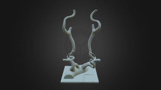 Aorta_S_carotis 3D Model
