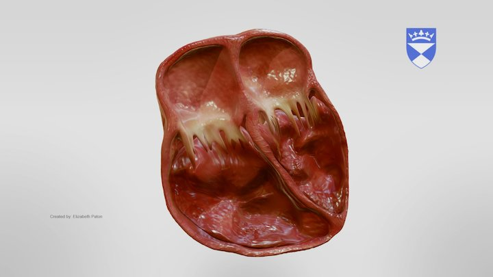 Dilated Cardiomyopathy 3D Model