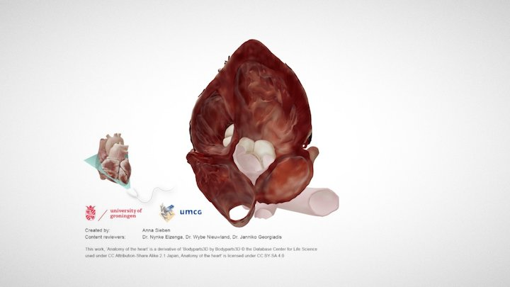 Cardiac Anatomy: Apical 5 Chamber Echo Plane 3D Model