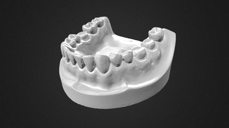 Dental Mold 3D Scan 3D Model