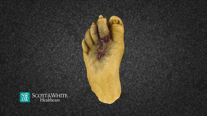 Left Foot with Diabetic Ulcers and Necrosis 3D Model