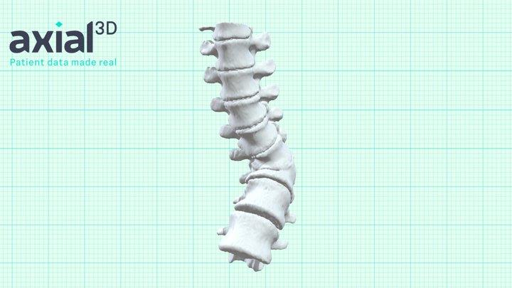 P01754 3D Model