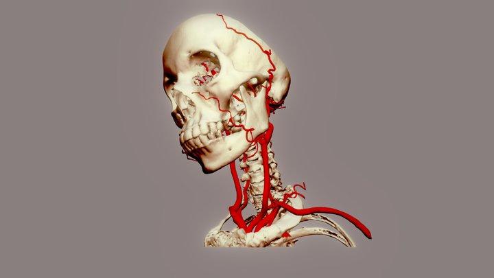 Arteries of head & neck 3D Model